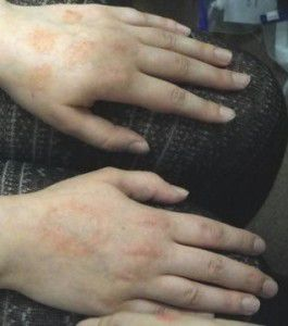 eczema on two hands