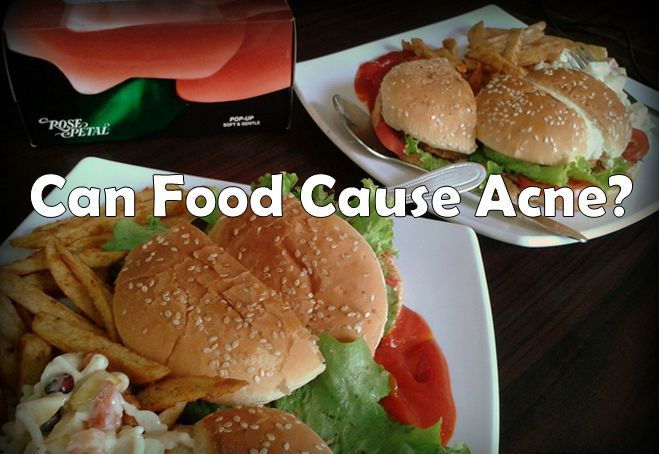 food and acne