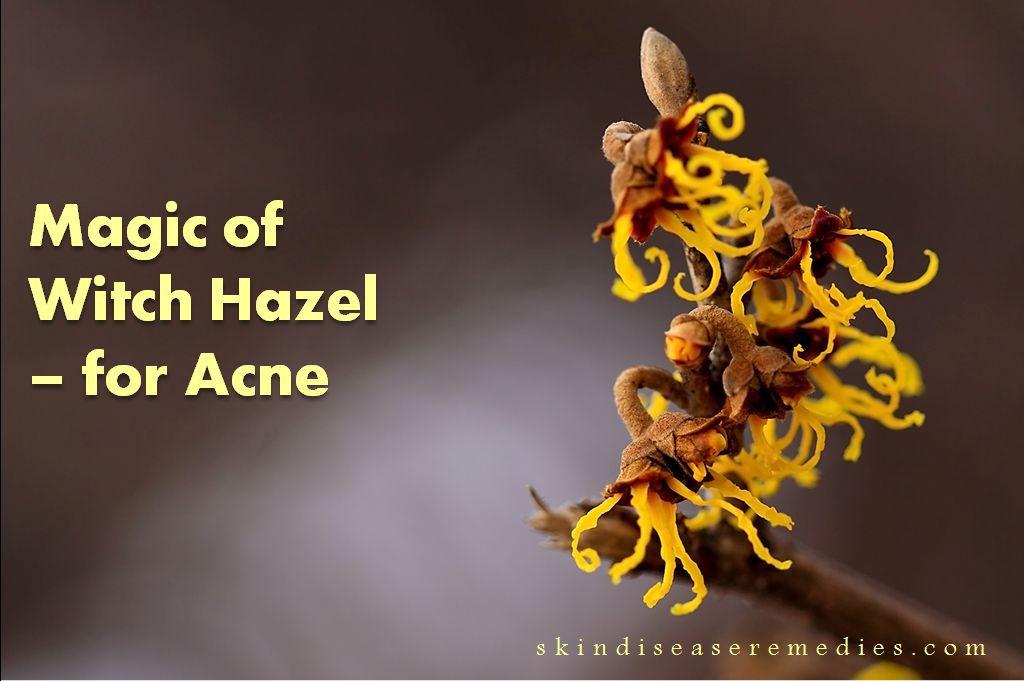 witch hazel for acne