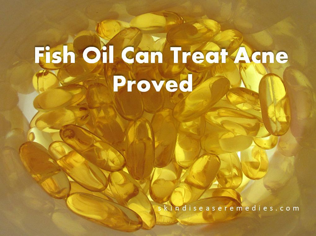 fish oil treats acne and why you should not use it