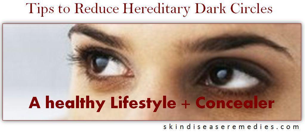 get rid of hereditray dark circles
