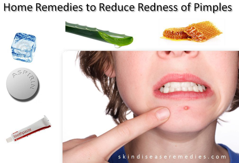 How To Remove The Redness Of A Pimple