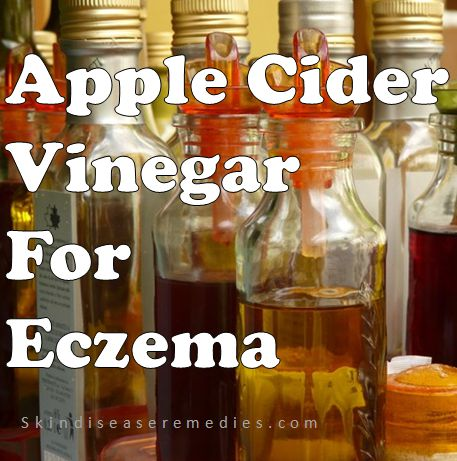 apple cider vinegar for eczema