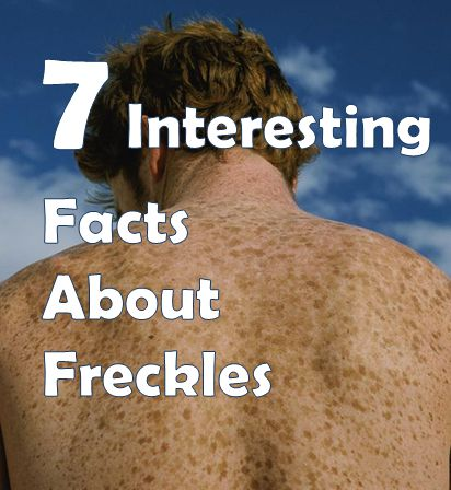 facts about freckles
