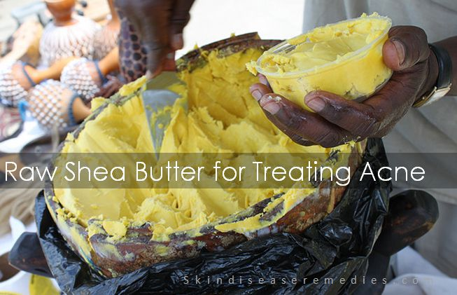 raw shea butter for treating acne
