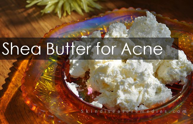 shea butter for treating acne