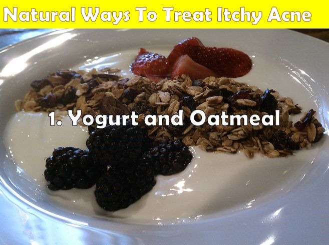 yogurt and oatmeal for itchy acne