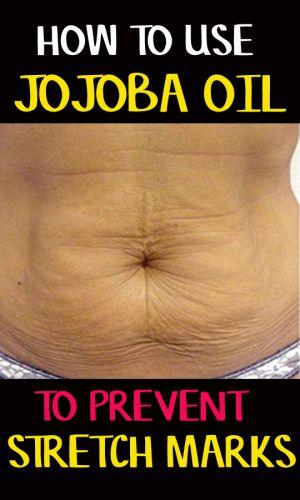 jojoba oil for stretch marks