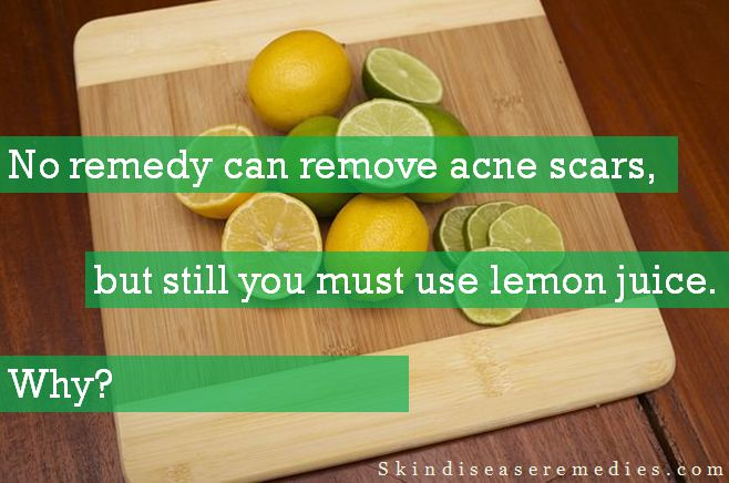 lemon juice for acne scars