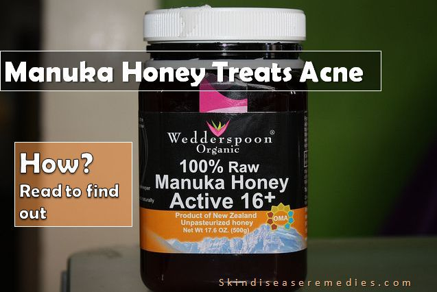 manuka honey for acne and ance scars