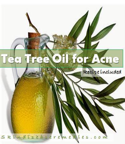 tea tree oil for treating acne