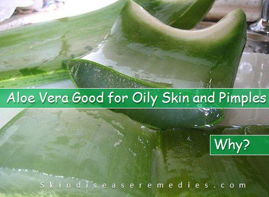is aloe vera good for oily skin
