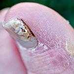 jojoba oil for nail fungus