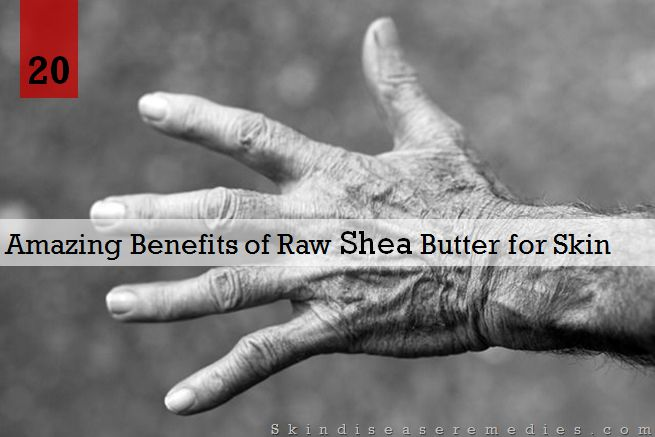 raw shea butter benefits for skin