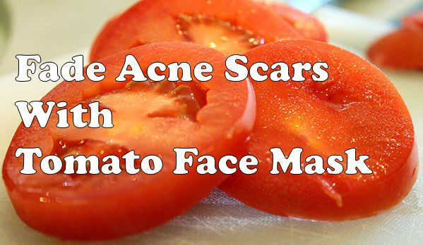 tomato face mask for acne scars