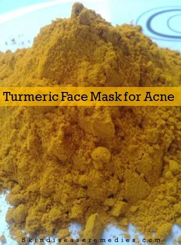 how to use turmeric powder for acne