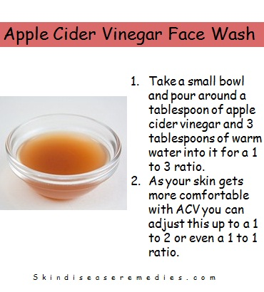 Apple Cider Vinegar Face Wash Skin Disease Remedies