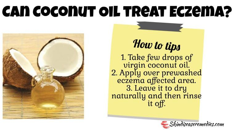 Coconut oil uses include as a topical treatment for eczema and psoriasis 1