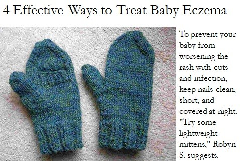 how to get rid of baby eczema