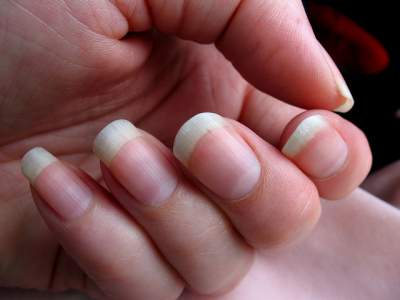 Dent On Fingernails