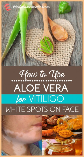 How To Use Aloe Vera For Vitiligo 7 Methods No 2 Is Best