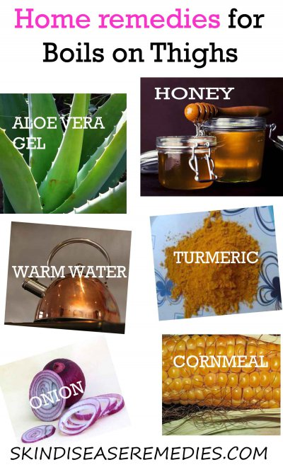 home remedies for boils on inner thighs