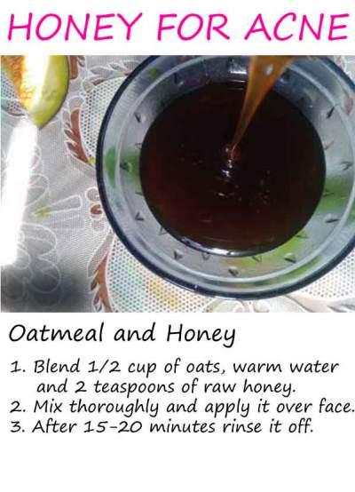 honey good for acne