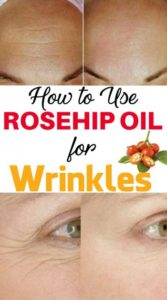 How to Use Rosehip Oil for Wrinkles & Eye Wrinkles – 5 Methods