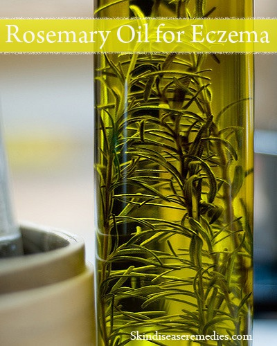 rosemary oil for eczema and psoriasis
