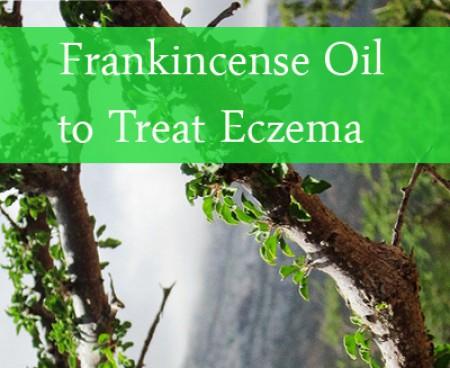 frankincense oil for eczema