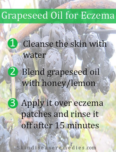 grapeseed oil for eczema