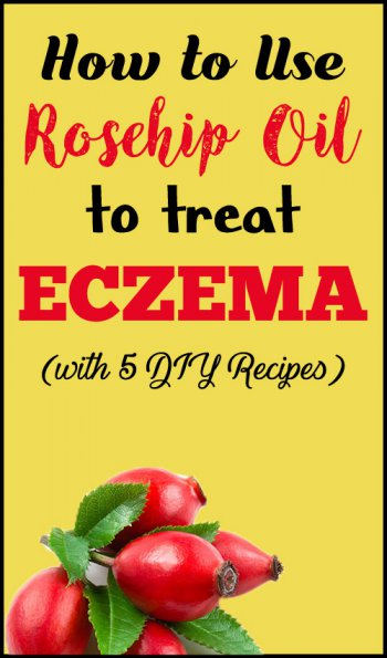 is rosehip oil good for eczema