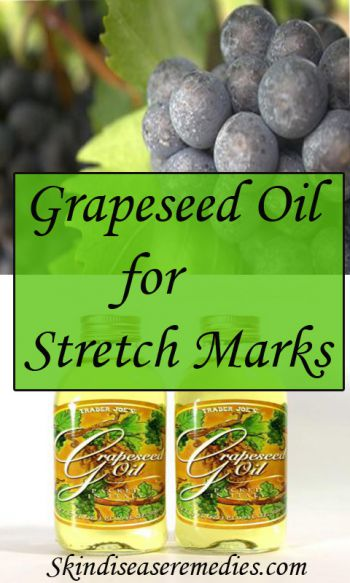 grapseed oil and argan oil stretch marks