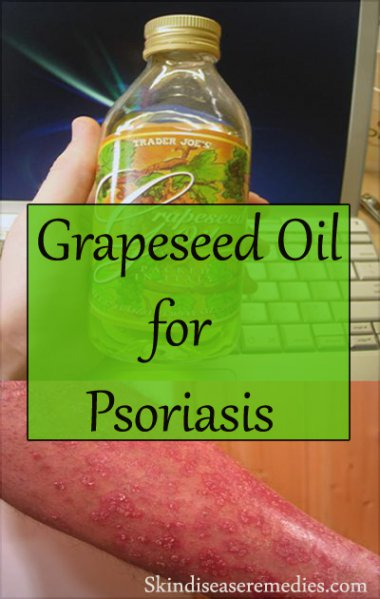 grapeseed-oil-for-psoriasis