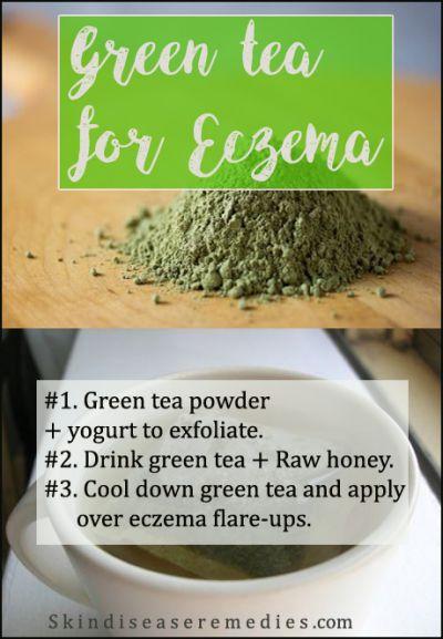 green-tea-for-eczema