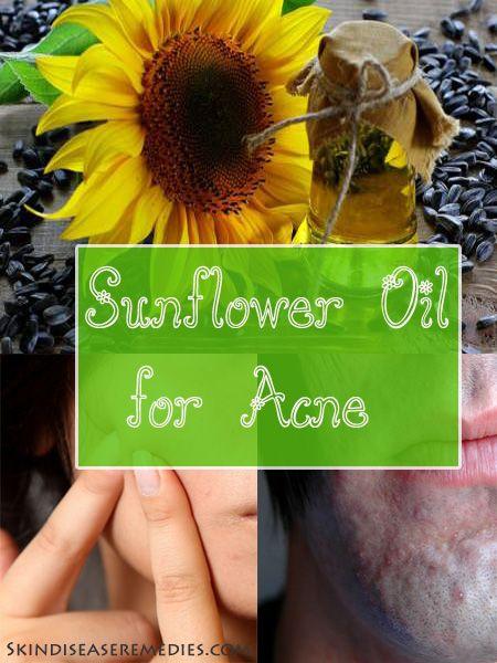 sunflower oil for acne