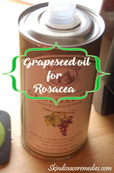 grapeseed-oil-for-rosacea