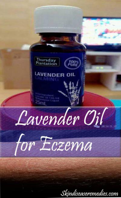 lavender-oil-eczema