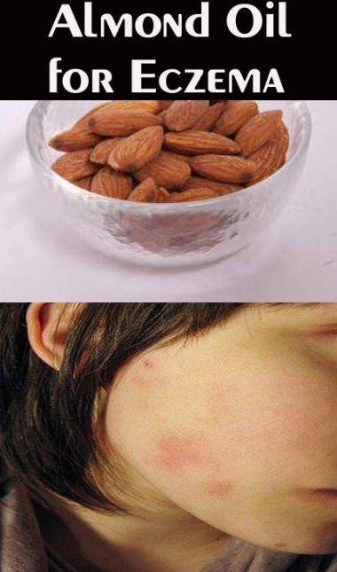 almond-oil-for-eczema-10-home-remedies