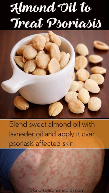 almond-oil-for-psoriasis