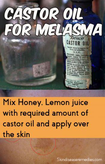castor-oil-for-melasma