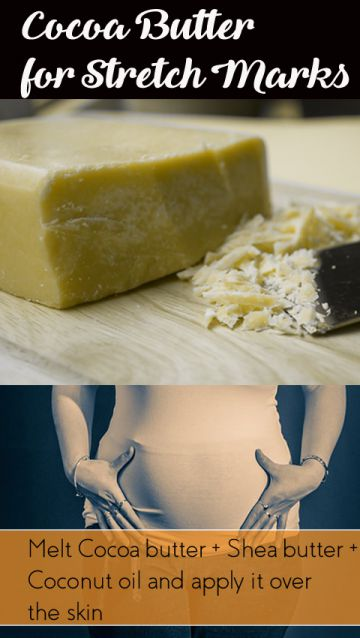 cocoa-butter-for-stretch-marks