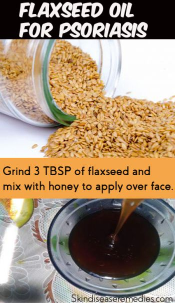 Flaxseed oil for psoriasis an effective home remedy for Fish oil for psoriasis