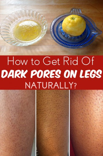 how to get rid of dark pores on legs fast