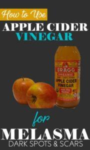 apple cider vinegar for melasma