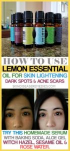 How to Use Lemon Essential Oil for Skin Lightening? 8 DIY Methods