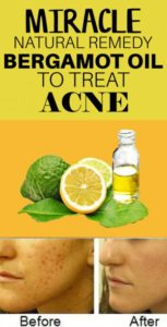 How to Use Bergamot Oil for Acne and Scars – 7 DIY Methods Included
