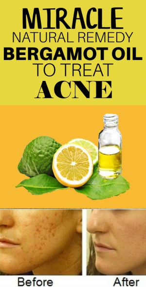 bergamot essential oil for acne