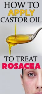 How to Use Castor Oil for Rosacea – 5 DIY Methods