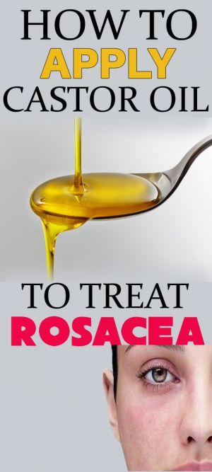 castor oil for rosacea